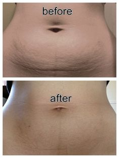 Actual before and after picture. This is what Arbonne's firming creme can do! Go to www.karacorpman.arbonne.com to order. Sign up as a Preferred Client and receive 20-40% off!