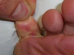 Most Effective Home Remedies For Athletes Foot - Best Home Remedies