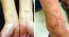 Diagnosis and Management of Granuloma Annulare - American Family Physician Chronic Fatigue, Chronic Illness, Granuloma Annulare, Dermatology Nurse, Mild Psoriasis, Lupus Awareness, Wound Care, Rare Disease, Homeopathy