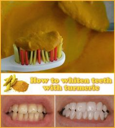 How to whiten teeth with turmeric