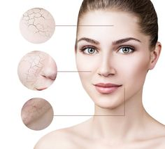 Facial rejuvenation treatment is popular in OKC as a skincare treatment. Here we discuss why skincare is so important for health and wellness. Best Acne Treatment, Skin Care Treatments, Skin And Hair Clinic, Skin Clinic, Pimple Scars, Acne Scars, Best Chemical Peel, Wax, Health