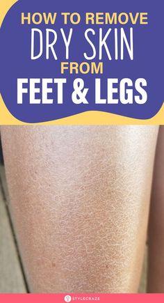 Toe Fungus Remedies, Dry Skin Remedies, Natural Health Remedies, Diy Beauty, Beauty Skin, Health And Beauty, Body Hacks, Happy Skin, Feet Care