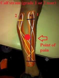 KT Tape app for upper calf pain/strain: (grade 1 or grade 2 tear)