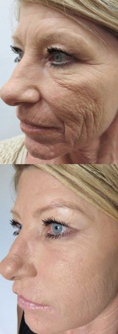 Before and after photos of wrinkle injection of cosmetic fillers Perth. Cosmetic Fillers, Anti Wrinkle Injections, Skin Needling, Cosmetic Clinic, Cosmetic Treatments, Excessive Sweating, Full Lips, Dermal Fillers, Look Younger