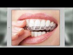 ¿Qué es  Alineadent? - Ortodoncia invisible #ortodonciainvisible #dental #estetica