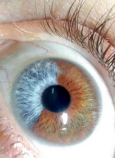 Heterochromia of the iris (Had a friend in small town Ontario- both parents had heterchromia. His left eye was blue with one corner quarter brown, his right eye was blue with brown blotches,,, wildest eyes I ever saw) Pretty Eyes, Cool Eyes, Beautiful Eyes, Photo Oeil, Heterochromia Eyes, Jace Lightwood, Eye Close Up, Aesthetic Eyes, Look Into My Eyes