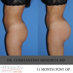 Big Booty Monday #BBM Before and After Photo. 11 Month Post Op. #brazilianbuttlift #buttaugmentation #buttlift #4beauty #miamibootydoctor #drmendieta #plasticsurgery #plasticsurgeon