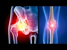 New calorie-posting rules might help knee and hip arthritis sufferers lose weight - Robert Afra Hip Arthritis, Rheumatoid Arthritis Treatment, Platelet Rich Plasma Therapy, Prosthetic Device, Home Exercise Program, Joint Replacement, Surgery