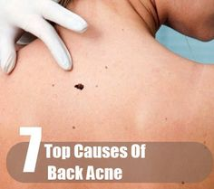 Top Causes Of Back Acne