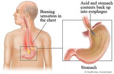 There are many severe acid reflux causes that can be very damaging to your health. Learn about the many severe acid reflux causes at:   http://www.acidrefluxathometreatment.downloadplrarticles.net/category/causes/