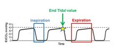 Capnography and etCO2 in EMS and ICU.