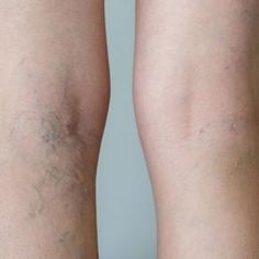Natural Remedies for Varicose Veins - Everyday Remedy Varicose Vein Remedy, Varicose Veins, Health Snacks, Dr Oz, Dental Health, How To Get Rid, Human Body, High Fever, Health And Beauty