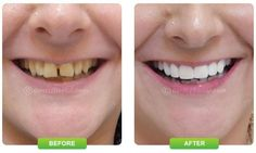 A beautiful smile is what everyone wishes for. To get a beautiful smile, you need to take care of your mouth and teeth. Hectic schedules and unhealthy eating and lifestyle habits are the reasons for most people ignoring their dental health.  http://www.dentzz.com/