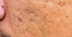 Every tissue that has a scar will make you feel unconfident and less attractive. But with natural cures you can make those scars disappear forever or at least fade a lot. You might be fooled to Beauty Skin, Health And Beauty, Facial Tips, Hormonal Changes, Warts, Acne Scars, Natural Cures, Herbalism, The Cure