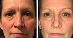 Hints To Erase Wrinkles: Do Facial Gymnastics Exercises Work Like Magic And How?