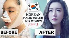 pixee fox before Pixee Fox, V Line Surgery, Korean Surgery, What Is Microblading, Bulbous Nose, Korean Plastic Surgery, V Lines, Face Contouring, Liposuction