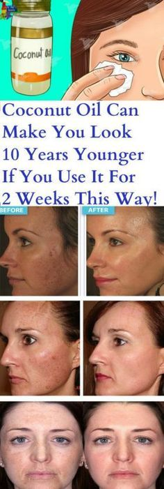 Coconut Oil Can Make You Look 10 Years Younger If You Use It For 2 Weeks This Way! – Stay Healthy Magazine