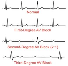 Types of AV Nodal Block