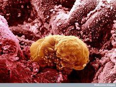 6 day old human embryo