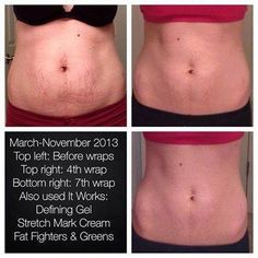 These are literally all of the products I use on my stomach (and I drink our Greens daily)! So amazing! Her stretch marks are practically gone! The pooch? Gone! If you want to find YOUR transformation (and remember, summer's almost here), msg me and we'll figure out what you need! https://www.facebook.com/jannawrapsanewyou or text me at 918-774-5268