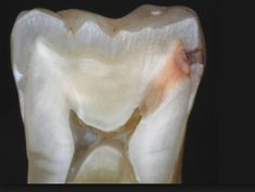 When the tooth cavity reaches the pulp, the last becomes infected. This is the stage of pulpal decay. #dentalcaries #toothdecay #dental