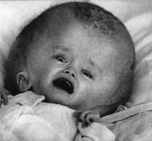 Chernobyl Disaster Effects | RADIATIONTEST: The Chernobyl meltdown