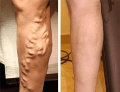Natural Remedies For Varicose Veins Homeopathic Alternatives for Varicose Vein Treatment Varicose Vein Remedy, Varicose Veins Treatment, Arthritis, Celebrity Selfies, Natural Cures, Natural Oil, Fett, Home Remedies, The Cure