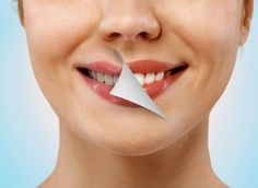 Wrap Your Teeth With Aluminium Foil And See The Magic - Eisamay White Teeth, Oral Hygiene, Dental Health, Weird Facts, Health And Beauty, Beauty Hacks, Health Fitness, Skin Care, Healthy