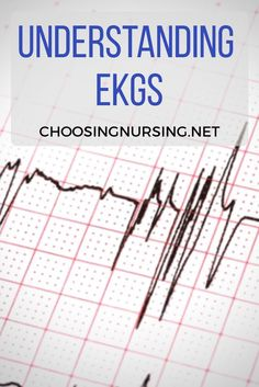 Do you struggle with understanding 12 Lead #EKG #rhythms? I know when I was first learning them in nursing school I thought I was WAY in over my head with trying to comprehend them. However one thing I have learned is that they are not really that challenging once you know how to study for them. Take for example, the image below. #choosingnursing #nclextips #nclexpn #nclexstudyplantips #nclextips #nclexrn #clinicalposters #Testtakers #NCLEXprep #NursingStudent #Nurse