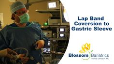 Lap Band Conversion to Gastric Sleeve | Blossom Bariatrics  Lap Band Conversion Verse Gastric Sleeve  #DrUmbach so knowledgeable and caring. & #BlossomBariatrics  is an amazing weight loss surgery center. Their patients have truly Blossomed as they have gone on to enjoy the simple pleasures of life. I 100% recommend these guys. Watch this video https://youtu.be/qVlpDqGlCAc again & learn for the best in the #weightlossindustry.  (via https://www.youtube.com/watch?v=qVlpDqGlCAc)