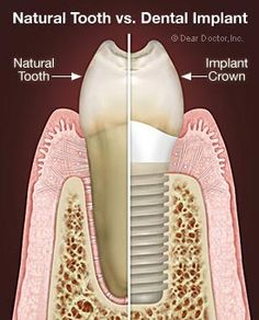 Great illustration of a natural tooth vs. a dental implant.