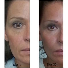 PERFECT SKIN Wrinkles vanish. You havent heard of it because it was sold exclusively for over 1000.00 per system, Now you can purchase or better yet if you are a hungry business savvy entrepreneur you can be a distributor and join me on my way up! myperfectskin.myalureve.com