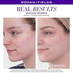 ⭐️ Introducing SPOTLESS ⭐️ I'm so excited! Rodan+Fields latest breakthrough is a simple TWO step acne regimen, designed specifically for TEENS and Young Adults! AND this regimen starts to kill acne causing bacteria on DAY Deep Clean Pores, Rodan And Fields Consultant, Independent Consultant, Acne Solutions, Skin Care Regimen, Acne Treatment, 3d Printing, Young Adults, 2 Step