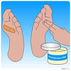If you're prone to blisters in your hiking boots, coat those areas with petroleum jelly before putting on your socks and boots.