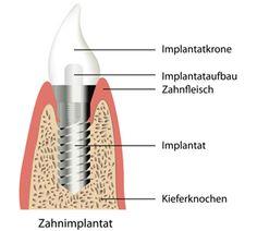 Hier sehen sie den Aufbau eines Implantates.