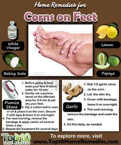 natural remedies for hard skin on feet