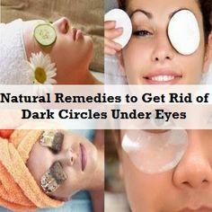 Natural Remedies to Get Rid of Dark Circles Under Eyes