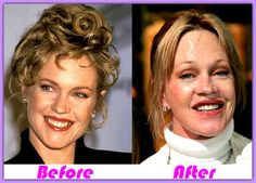 Melanie Griffith Plastic Surgery Before and After Melanie Griffith Plastic Surgery Before and After Botox and Facelift, Lips and Browlift Bad Celebrity Plastic Surgery, Botched Plastic Surgery, Celebrity Surgery, Bad Plastic Surgeries, Plastic Surgery Before After, Plastic Surgery Gone Wrong, Plastic Surgery Photos, Celebrities Before And After, Celebrities Then And Now