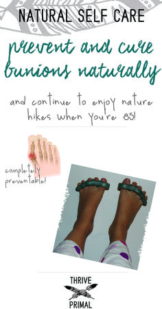 Thrive Primal - prevent and cure bunions naturally with toe relaxers. Helps foot pain and joint tightness caused by wearing pointy shoes!