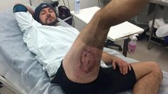 An iPhone allegedly exploded on this guy's butt and he's not happyGareth Clear is never speaking to his iPhone again after this.  Image: gareth clear/daily mail  By Jerico MandyburAustralia2016-08-02 05:00:48 UTC  Sydney cyclist Gareth Clear is adamant that his iPhone is responsible for his melting his pants and giving him a gruesome third-degree burn on his butt.  According to the Daily Mail the 36-year-old was mountain biking Sunday with his phone in his back pocket when he fell off his…