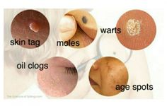 Destroy Moles, Warts, Blackheads, Skin Tags And Age Spots Completely Naturally