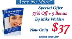 ACNE NO MORE ™ BY MIKE WALDEN http://digiebookstore.com/acne-no-more-by-mike-walden/ #acnenomore #acnenomorefree