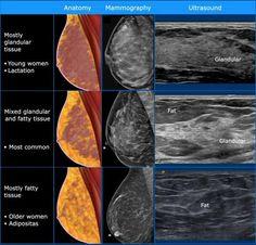 Vascular Ultrasound, Ultrasound Sonography, Ultrasound School, Radiology Student, Ultrasound Technician, Ultrasound Pictures, Human Body Anatomy, Breast, Surgery