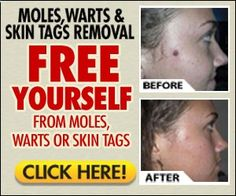 how to get rid of skin tags and moles naturally