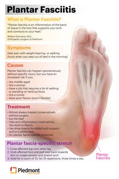 Plantar Fasciitis Symptoms and Treatments | Piedmont Healthcare Remedies For Plantar Fasciitis, What Is Plantar Fasciitis, Plantar Fasciitis Treatment, Plantar Fasciitis Massage, Plantar Fasciitis Symptoms, Health And Beauty, Health And Wellness, Health Tips, Facitis Plantar