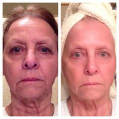 Rodan + Fields before and after. The pic on the left was taken in Dec. 2013 and the pic on the right was taken on May 30, 2014. It's undeniable that she is glowing! Used the Redefine Power Pack which includes the skincare regimen, AMP MD roller and MACRO Exfoliator.  http://tiffanystarika.myrandf.com