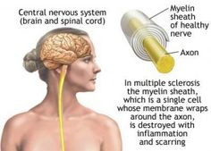Multiple sclerosis and omega-3 fish oil