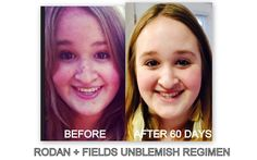 My teenage niece Vaya knows if she needs skin care help, to ask her Auntie Noelle! She was suffering from acne breakouts so she started Rodan and Fields UNBLEMISH regimen - see BEFORE/AFTER pic for yourself! The proof is in the pudding, as they say! Needless to say, I've got one happy niece w/great skin, just in time for all her holiday events! The only one with red on their face this holiday season should be Rudolph the Reindeer! GO HERE: https://noellebuffer.myrandf.com/Shop/Unblemish