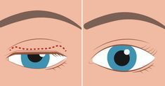 This article is shared with permission from our friends at Dr. As we age, wrinkles and droopy eyelids are to be expected. But, if an eyelid droops so much that it covers the pupil and blocks the vision, it can cause significant disruption in our live Home Remedies For Snoring, Sleep Apnea Remedies, What Causes Sleep Apnea, Droopy Eyelids, How To Stop Snoring, Snoring Solutions, Sagging Skin, How To Get Sleep, Prevent Wrinkles