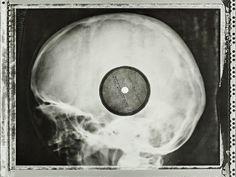 Juxtapoz Magazine - Soviet-Era Banned Western Music Pressed onto X-Rays